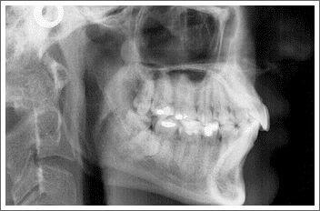 prześwietlenie zębów kraków